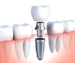 dental crown, abutment, and implant diagram
