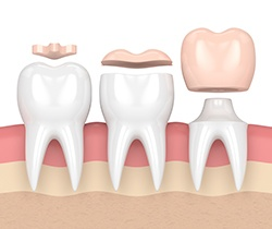Animation comparing inlay, onlay, and dental crown
