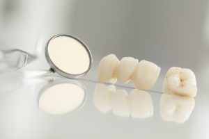 Dental crowns support and beautify failing teeth.