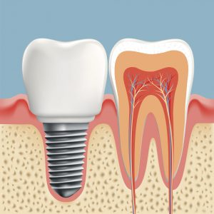 Dental implants in State College create strong smiles.